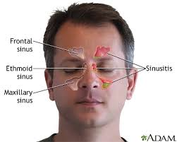 can sinus infection cause dizziness light headed sinusitis treatment los angeles dr zadeh