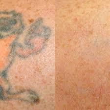 newport tattoo removal 31 photos u0026 11 reviews tattoo removal