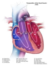 Heart Anatomy Arteries Transposition Of The Great Vessels Wikipedia