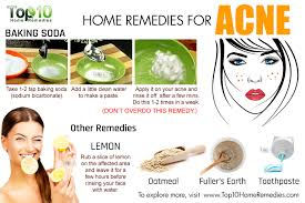 Home Remedies For Small Burns - home remedies for acne top 10 home remedies