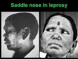 nasal granulomas dr vishal sharma ppt