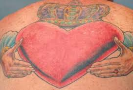 tattoo removal frequently asked questions laser tattoo removal charleston hurricane wv permanent tattoo removal