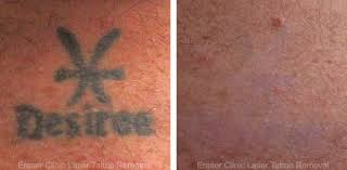 before u0026 after photos eraser clinic laser tattoo removal