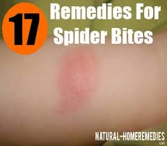 17 Best Images About Spider - best treatment for spider bites how to treat spider bites