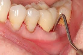 Pictures Of Oral Cancer On Roof Of Mouth by Tooth And Gum Abscess Symptoms And Treatment Pictures And X Rays