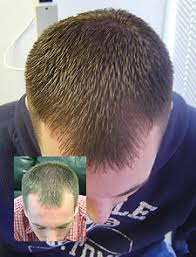 low level light therapy hair laser hair therapy chicago embassy hair loss chicago