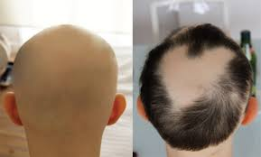 arthritis drug helps people regrow hair more cases show