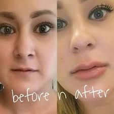 60 best tattoo removal images on pinterest tattoo removal laser