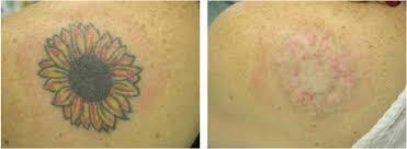 laser tattoo removal newark laser tattoo removal hockessin