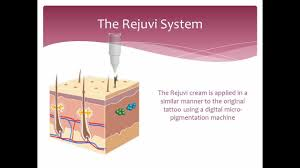tattoo removal non laser how it works rejuvi youtube