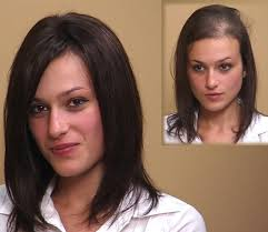 wigs for women with thinning hair hair restoration hair system for women hair bonding hair