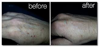 Light Spots On Face Best Laser Skin Rejuvenation And Treatments St Louis Laser