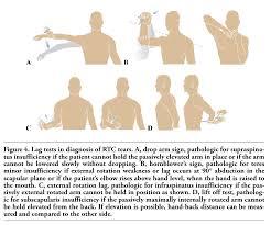 How To Palpate Subscapularis Rotator Cuff Disease U2013 Basics Of Diagnosis And Treatment Boykin