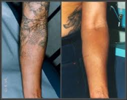 laser tattoo removal oklahoma skin u0026 vein care dr kevin m