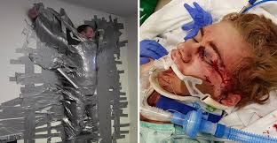Challenge Is Dangerous 14 Year Boy Nearly Dies Duct Challenge