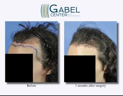 transplant hair second round draft watch a patient s real time growth after 3439 grafts gabel hair