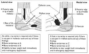 Posterior Inferior Tibiofibular Ligament Ankle Injuries Sprained Ankle And Ankle Injuries Treatment Patient