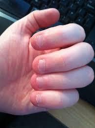 nail designs for short bitten nails gel nail extensions on bitten