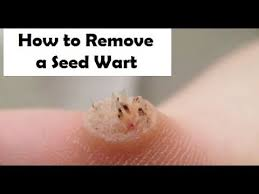 Home Remedies For Planters Warts by How To Remove A Seed Wart Treatment For Seed Warts Youtube