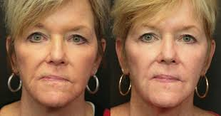 tattoo removal before u0026 after photos worcester ma