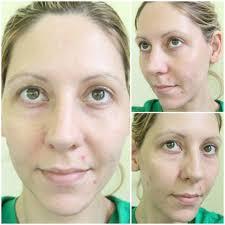 best airbrush makeup for acne makeup vidalondon