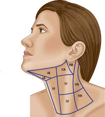 neck dissection and neck cancer treatment