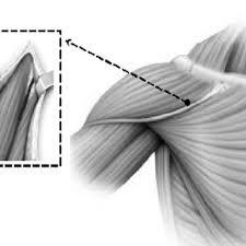 chambre implantable has figure 1 etapes de la pose de la chambre implantable scientific