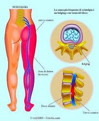 come si fanno le punture sul sedere infiammazione nervo sciatico sintomi rimedi e cura