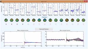 frontiers tmseeg a matlab based graphical user interface for
