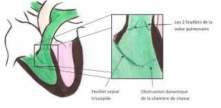 obstruction dynamique de la ccvd 2 cardiologie ecthelion