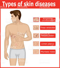 types of skin diseases stock vector art 686241776 istock