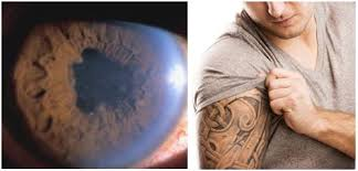 tattoo ink may trigger uveitis a serious eye inflammation condition