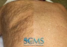 laser hair removal for los angeles orange county