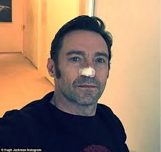 hair cut steps after cancer hugh jackman has a 6th skin cancer cut out from his nose daily