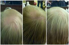 benefits of eufora hair color hero by eufora hair growth after six weeks with eufora hero s