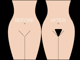 pubic hairs pics what is a pubic hair transplant bauman medical