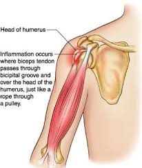 Biceps Reflexes Biceps Tendinopathy Active Care Physiotherapy Clinic