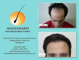 hair transplant costs in the philippines before and after photos with patients testimonials of hair