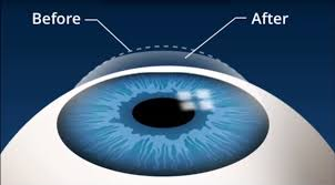 What Are The Chances Of Going Blind From Lasik I Got Lasik Eye Surgery 4 Years Ago Business Insider