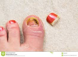 injured toe nail growth royalty free stock photography image
