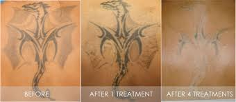 tattoo removal cilyca