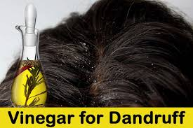 how to use vinegar to get rid of hair dye vinegar for dandruff jpg