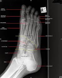 Radiology Anatomy Foot Lateral X Ray Anatomy Radiology Anatomy Images