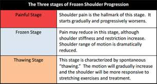 frozen shoulder treatment mississauga burlington dynamic