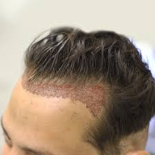 fue haircuts before and after fue hair transplant men s hair styles
