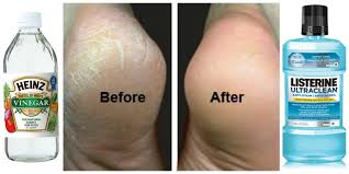 how to fix cracked feet fast listerine dead skin and vinegar