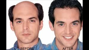 onion juice cure hair loss and promote hair regrowth how to