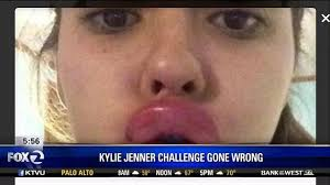 Challenge Went Wrong Kcba Fox 35 Monterey Salinas New Jenner