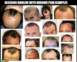 different types of receding hairlines what does a receding hairline look like visihow