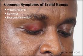 what causes eyes to be sensitive to light types of eyelid bumps treatment to get rid of it
